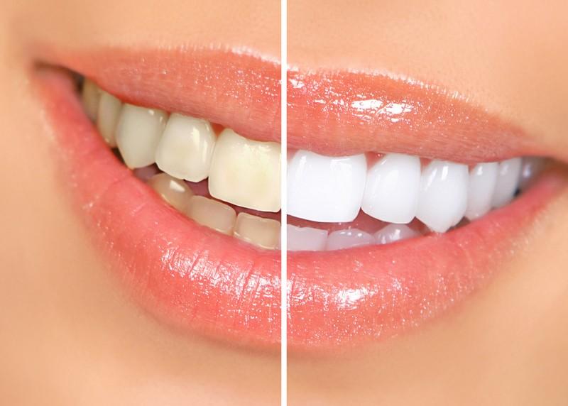Teeth Whitening  Phoenix, AZ
